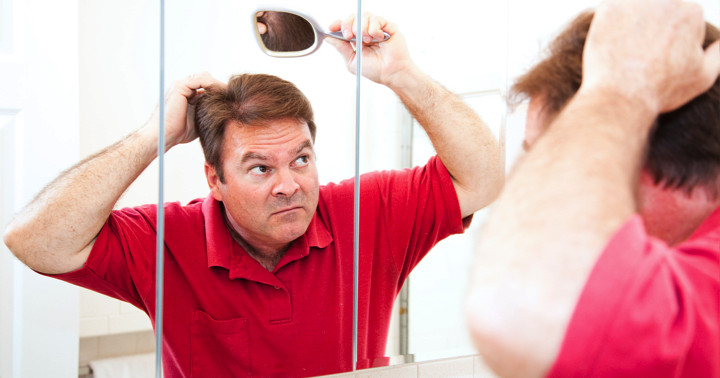 円形脱毛症の原因は?の写真