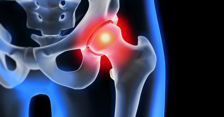 股関節の手術後にステロイドを使うとどんな影響があるか? の写真