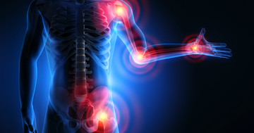 関節が腫れて痛む関節リウマチ、クラザキズマブを使うと?の写真