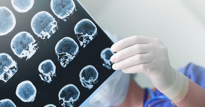 画像で100個以上のがんを発見!PET/CTの精度は?の写真