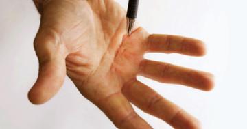 指が曲がったまま伸ばせない「デュピュイトラン拘縮」、細菌から採った酵素が改善の写真