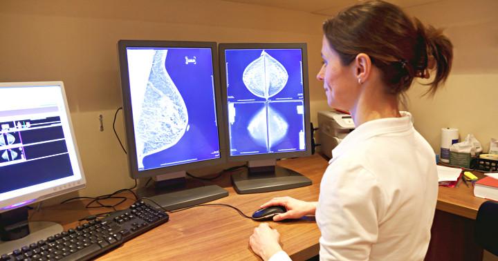 乳がんの検査は何を見つけているのか?マンモグラフィーに超音波検査を追加すると…の写真