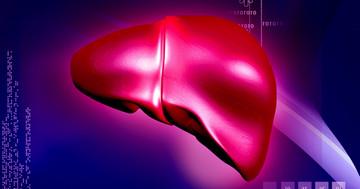 C型肝炎は関節の手術をした後どうなりやすいか? の写真