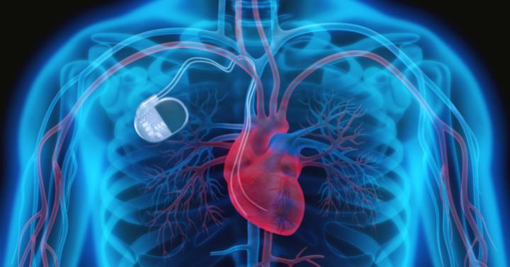 前触れなく心臓が止まる「ブルガダ症候群」、植え込み装置で急死を防げるか?の写真