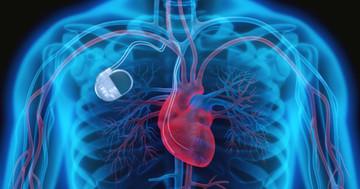 前触れなく心臓が止まる「ブルガダ症候群」、植え込み装置で急死を防げるか?