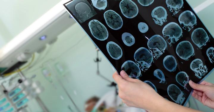 脳性麻痺の症状改善を画像検査で予測できるか? の写真