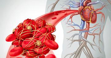 心筋梗塞で血の塊を吸い取る治療は逆効果?の写真