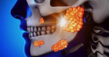 耳下腺摘出術後のリハビリテーションは自主トレと同程度の効果 の写真