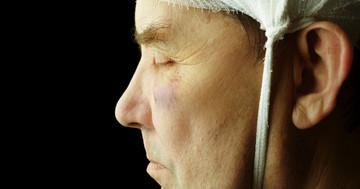 軽度外傷性脳損傷の生活の満足度にかかわる要因の写真