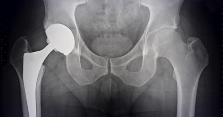 高齢者の人工股関節手術後の痛みに、セレコキシブが有効の写真