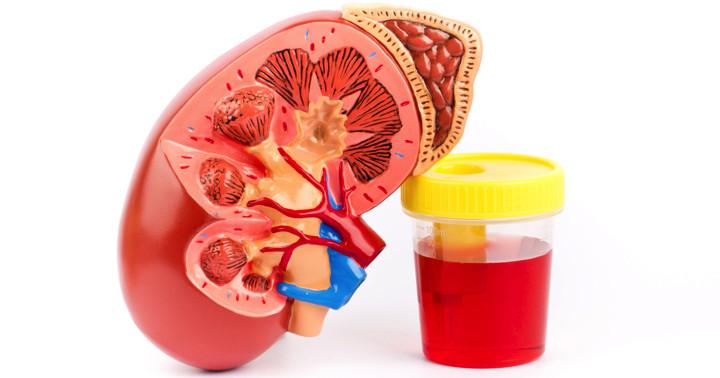 気付かないうちに腎臓が悪化する難病、IgA腎症の重症患者に免疫抑制薬は有効なのかの写真