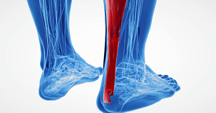 アキレス腱損傷では保存療法と手術のどちらがよいかの写真