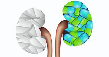 胃の薬を使った人を10年以上追跡すると、腎臓に影響が?の写真