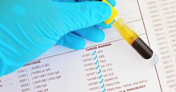 がんの検査で「陽性」と言われたら、がんがあるのか?の写真