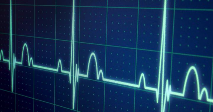 アルコール依存症の人に心拍数の変動を見せるとどうなる?の写真