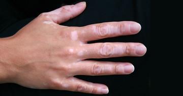 肌の色がまだらになる「白斑」の症状は、どんな病気と関係しているかの写真