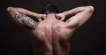 タトゥーの中に皮膚がんが!の写真