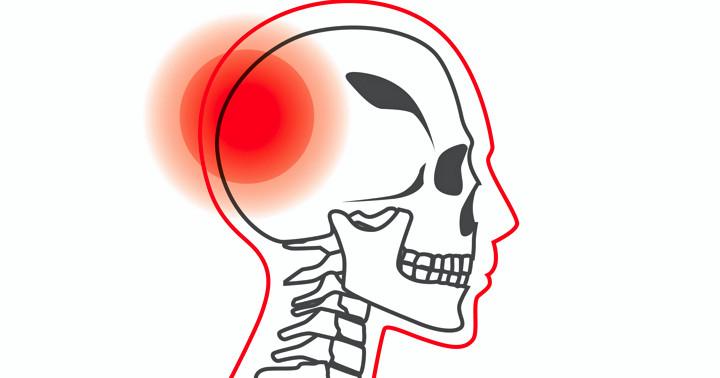 頭の中に出血があるかどうか、診察で見分ける方法の写真