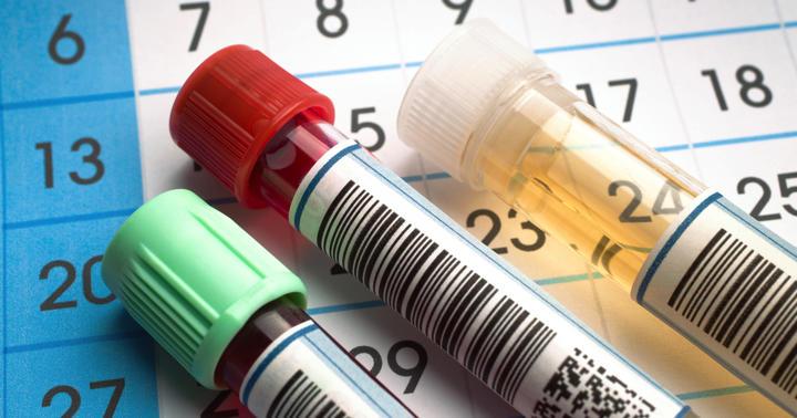 高尿酸血症と痛風の治療薬の写真