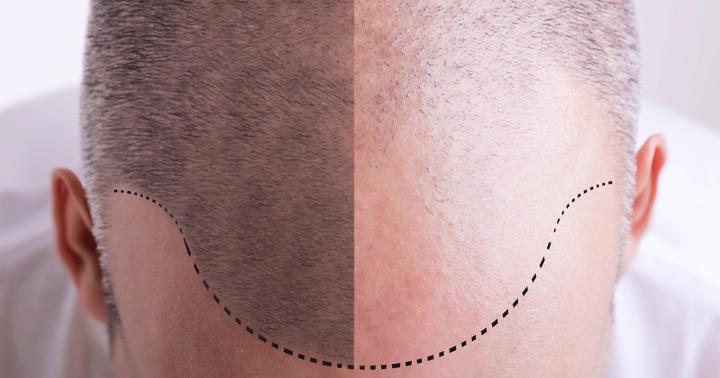 フィナステリド、ミノキシジルなどのAGAに対する治療薬の効果とは?の写真