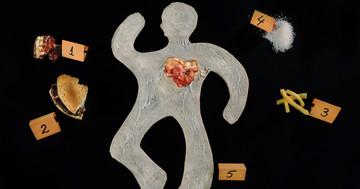 「人食いバクテリア」で死亡した人に多い体型、生活習慣病とも関係?の写真