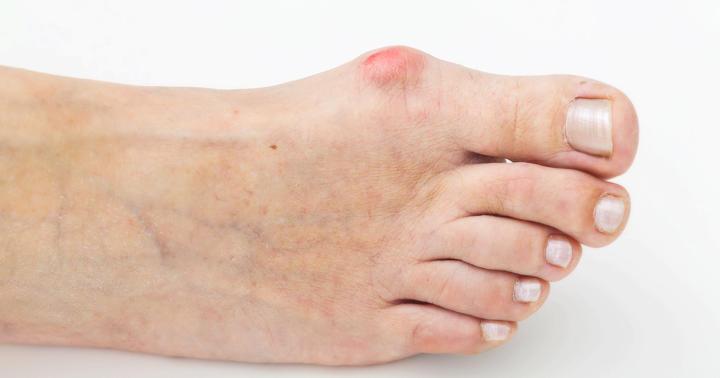外反母趾の手術についての写真