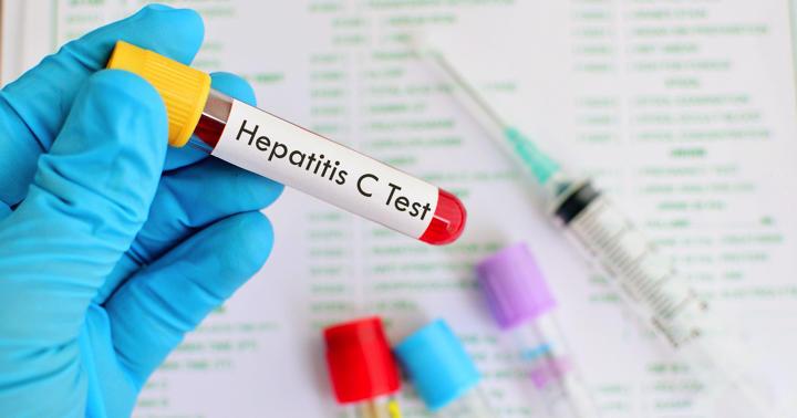 C型肝炎、ウイルスがいなくなったら完治なのか?の写真
