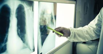 肺・消化管の進行非機能性神経内分泌腫瘍にエベロリムスは有効か?の写真