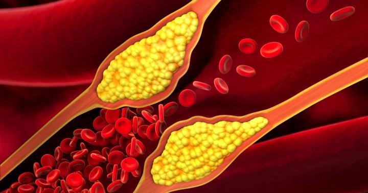 アテローム血栓性脳梗塞とは?原因、症状、治療について解説の写真