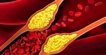アテローム血栓性脳梗塞とは?原因、症状、治療について解説の写真 (C) psdesign1 - Fotolia.com