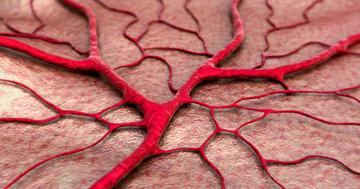 脳梗塞のひとつ、ラクナ梗塞とは?原因、症状、治療についての解説の写真