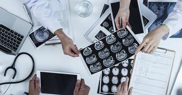 脳梗塞の治療法とは?外科的手術について解説の写真