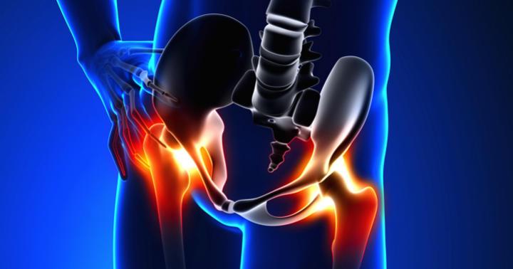 変形性股関節症の原因と症状の写真