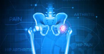 変形性股関節症の治療についての写真