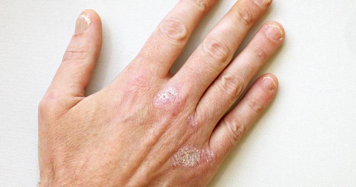 皮膚がカサカサになる「乾癬」は「がん」とも関係している?の写真