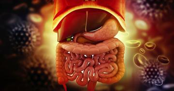 下血や炎症の原因に、「大腸憩室」ができやすい人の特徴の写真