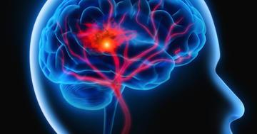 脳出血(脳内出血)のリハビリとはの写真