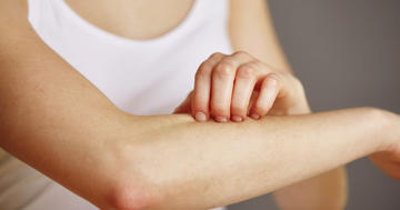 皮膚がカサカサになる「乾癬」の原因と抗生物質に関係はあるか?の写真