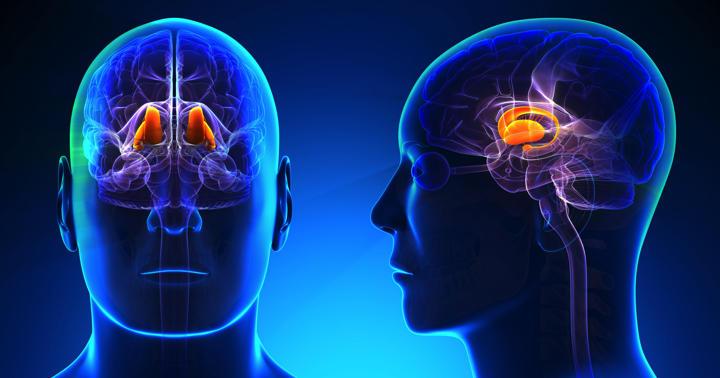 視床出血の特徴とは!?症状、治療、予後についての解説の写真
