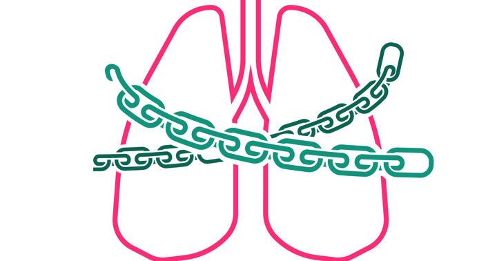 急に呼吸ができなくなる緊急事態「ARDS」、軽症でも34.9%が死亡していたの写真