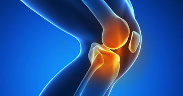 変形性膝関節症の痛みにヒアルロン酸、効いたように見えても…?の写真