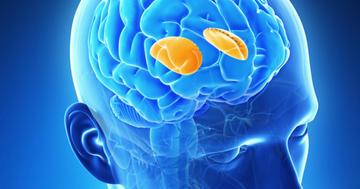 脳出血で多い被殻出血の症状、治療、予後は?の写真