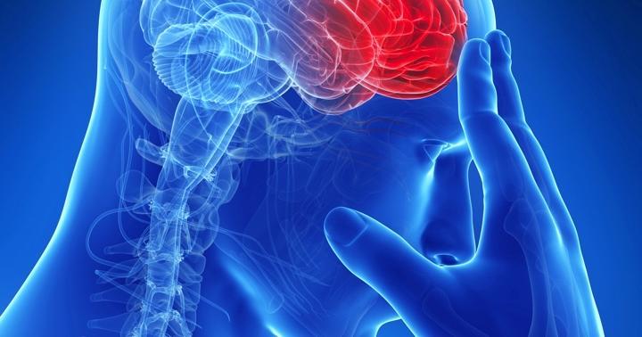 脳出血の症状・後遺症は片麻痺だけ?その他の症状について詳しく解説の写真