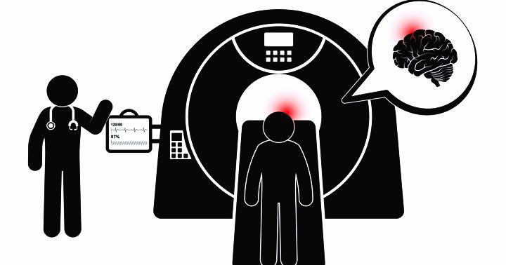 突然の頭痛、CTを撮れば安心か?の写真