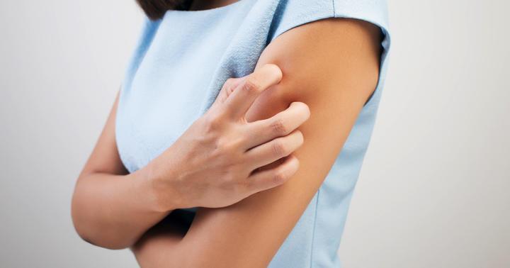 蕁麻疹の種類は何がある?原因や症状の違いや検査方法を解説の写真