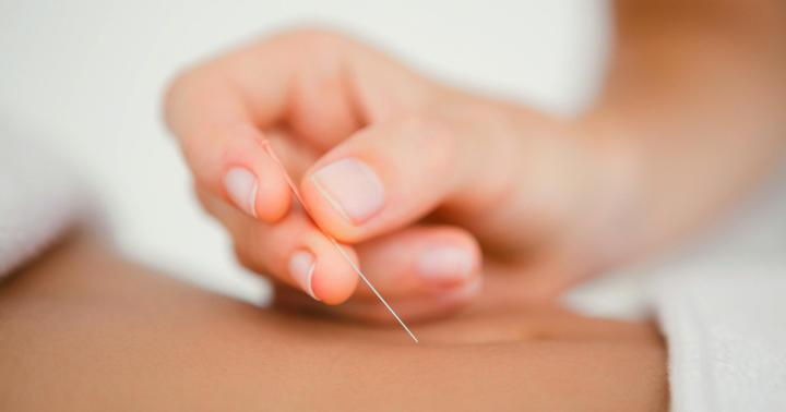 線維筋痛症に鍼治療は有効か?の写真