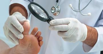 日本人の10人に一人が爪の水虫!? 爪白癬の概要とその治療薬について詳しく解説の写真