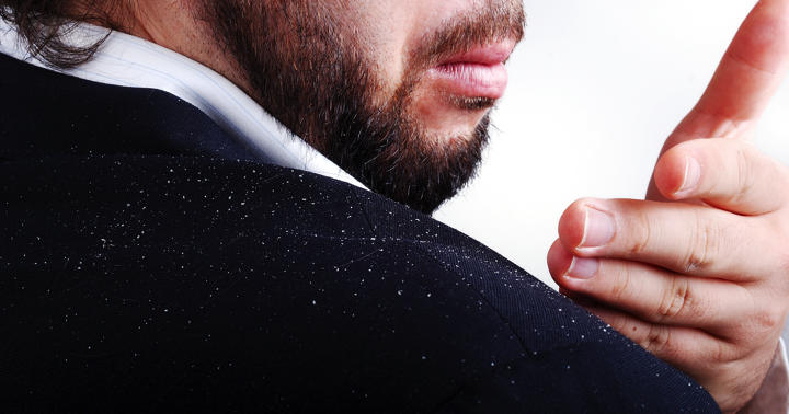「乾癬」による頭皮の炎症、どの薬が効いた?の写真