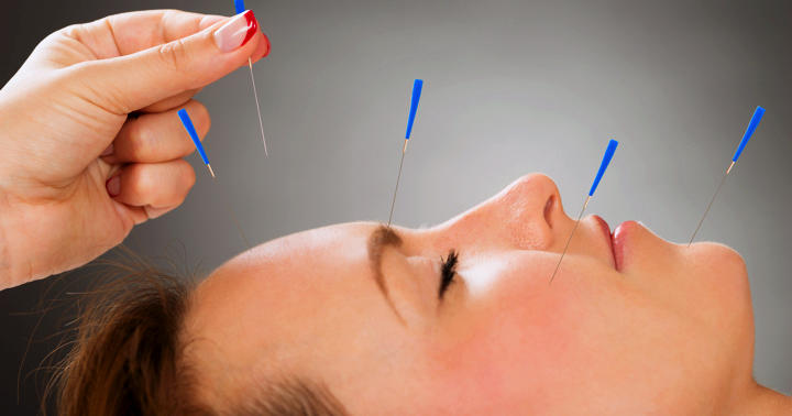 くしゃみとかゆみが軽くなった!アレルギー性鼻炎の鍼治療の写真