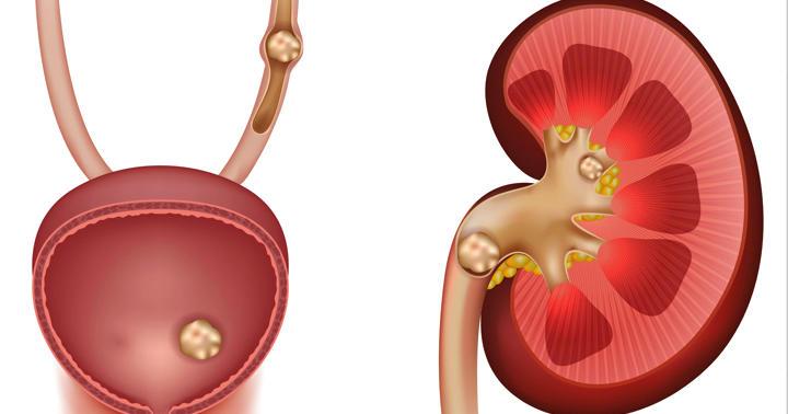 尿管結石の診断、超音波検査でどれぐらいわかるのか?の写真